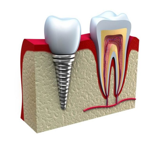 dental-implant001