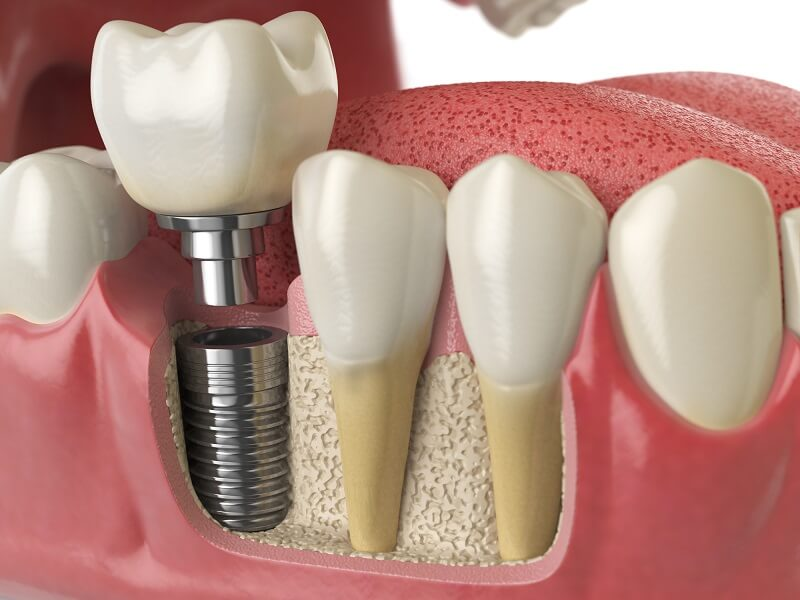 dental-implant005
