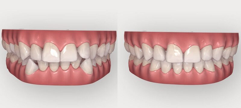 front-tooth-orthodontics01