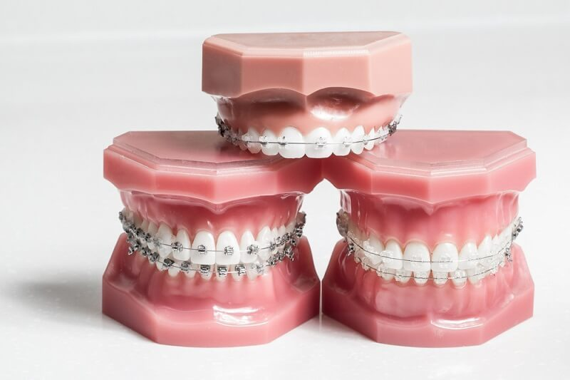 orthodontics001